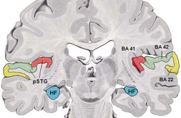 The image shows a coronal section of a human brain. BA41(red) and BA42(green) are primary auditory cortex.