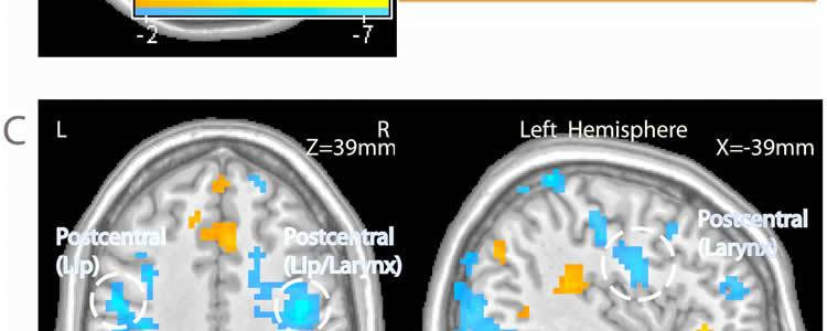 The brain scan images show activation in the auditory cortex and other areas of the brain.