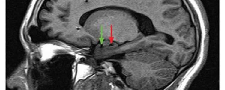 The image shows and mri of the brain with arrows pointing to the amygdala.