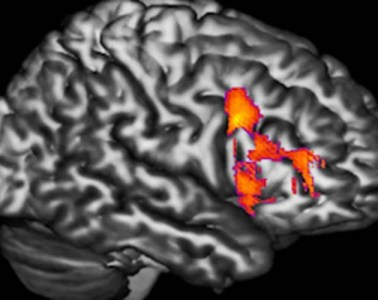 The image shows an mri scan with the dorsal frontal cortex lit up in a bipolar patient.