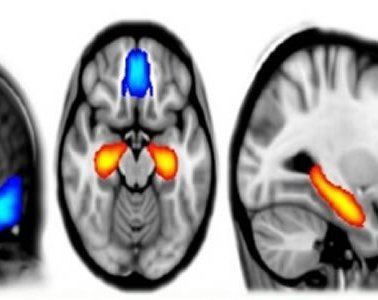 The image shows a scan which details brain activity under psilocybin.