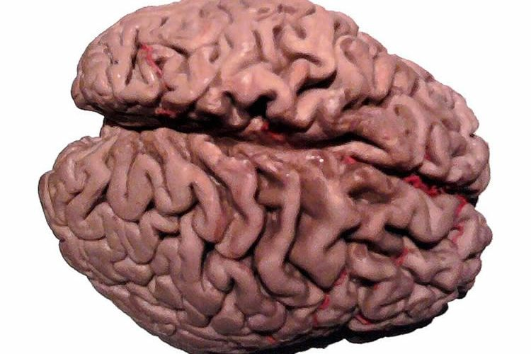 This image shows a shows a plastinated brain of an Alzheimer's patient.