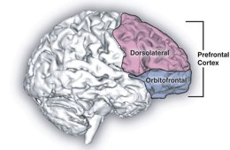 This image shows the location of the dorsolateral prefrontal cortex in the brain.