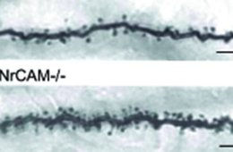 The image is comparison of a dendrite with the protein NrCAM (top) and a dendrite without the protein (bottom).
