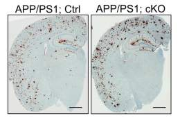 The image shows two different brain slices. One has a buildup of amyloid beta.