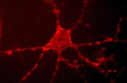 The image shows Archer1 fluorescence in a cultured rat hippocampal neuron.