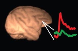 This image shows a brain with lines depicting neural activity.