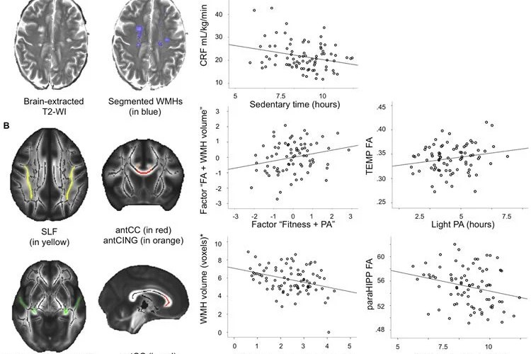 The image shows different brain scans of the white matter volume.
