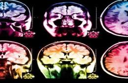 This image shows mri brain scans.