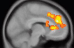 This image shows a PET scan with changes in the dorsal anterior cingulate cortex.