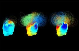 This image shows the brain networks in the patients in vegetative states.