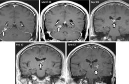 This image shows a number of brain scans which show the tapeworm.
