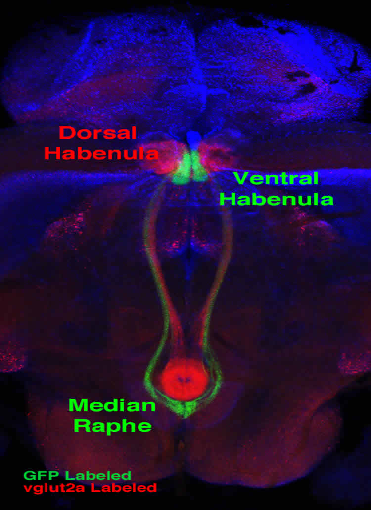 This image shows the median raphe and ventral habenula.