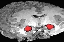 The is a brain image with the location of the amygdala highlighted.