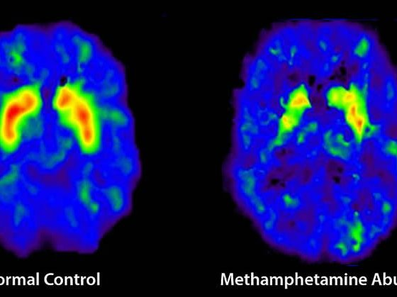 Parkinsons Disease Stages >> Meth Users Face Higher Risk for Developing Parkinson's Disease   Neuroscience News