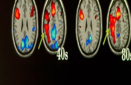 The image shows fMRI scans of taken from the study.