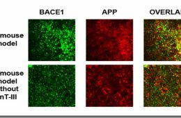 The image shows BACE1 and APP in the alzheimer's brain slices. The caption best describes the image.