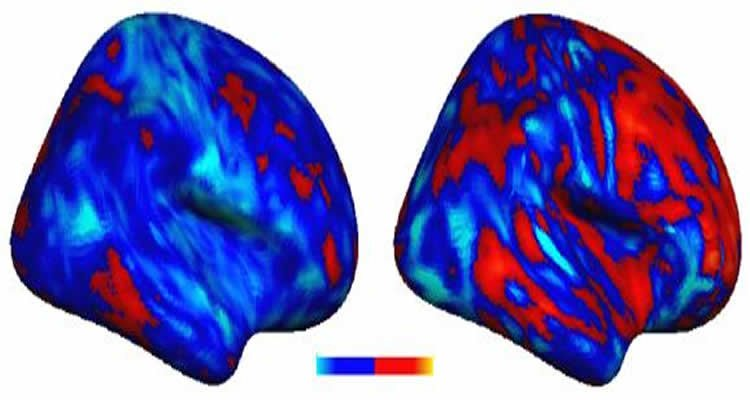 In Autism Brain Shows Unusual Thinning >> Researchers Discover Idiosyncratic Brain Patterns In