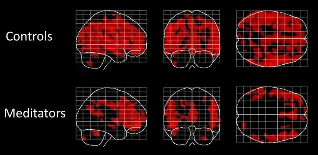 Forever Young: Meditation Might Slow the Age-Related Loss of Gray Matter in the Brain