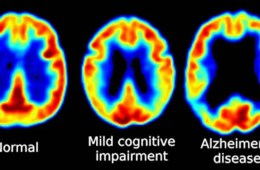 This illustration shows three PET scans of a normal brain, a brain of a person with MCI and a scan of an Alzheimer's patient.