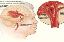 This image shows how a hemorrhagic stroke can occur in the brain.