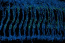 This is a 3-D reconstructed image of the Drosophila optic ganglion where photoreceptor axons.