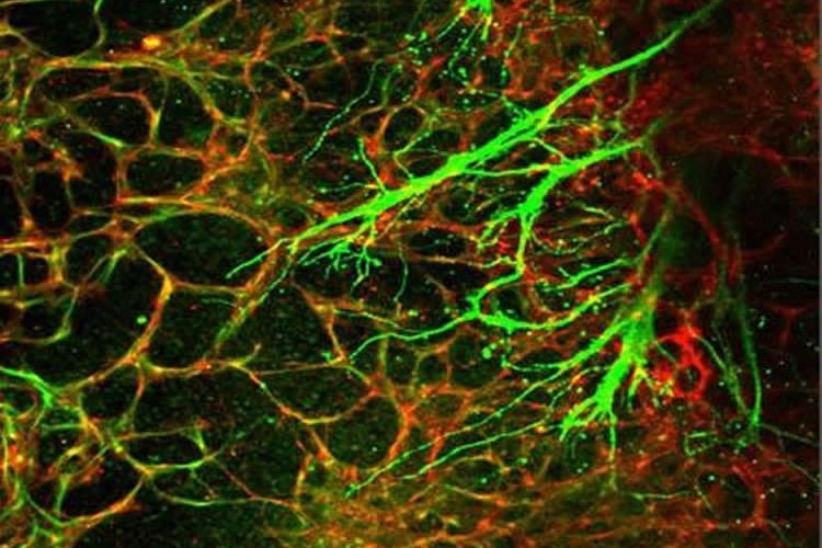 This shows the autonomic neurons (green) co-patterning with blood vessels (red).