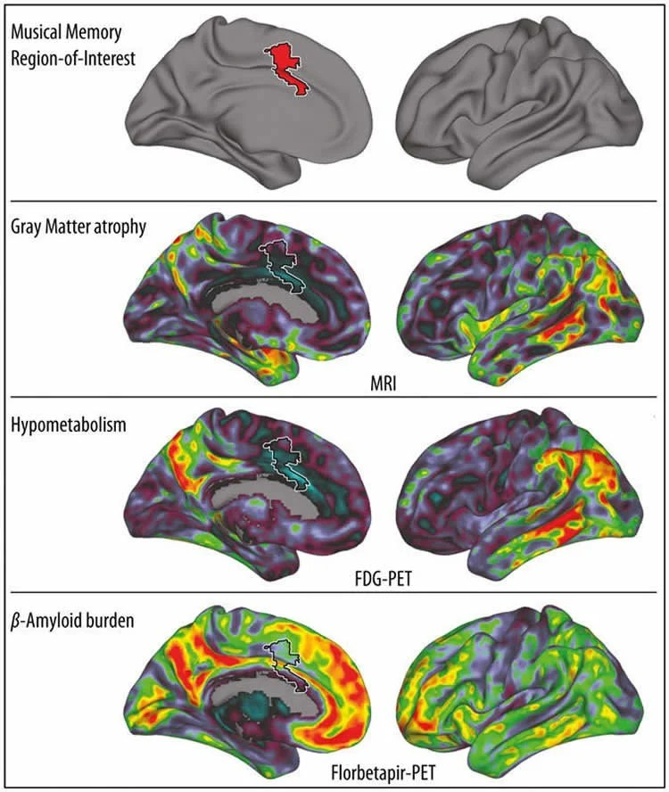 This image shows the region for musical memory in a brain scan.