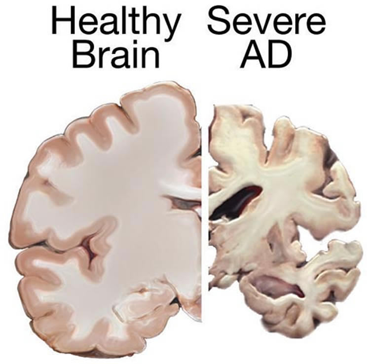 Protein Fragment Produced in the Brain Inhibits Enzyme ...