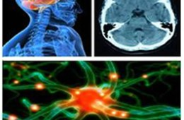 This image shows a collection of neuroscience related issues including a neuron, a brain and an MRI brain scan.