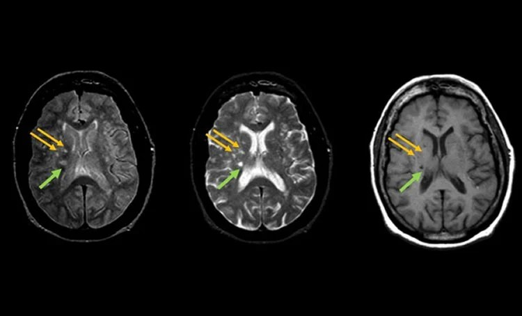 small brain lesions could warn of heightened stroke risk
