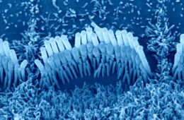The image shows mechanosensory hair bundles in the cochlear.
