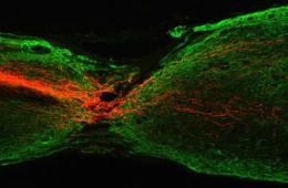 This image shows the regeneration of a mouse corticospinal tract axon.