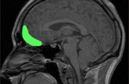 This image shows a brain scan with the orbitofrontal cortex highlighted in green.