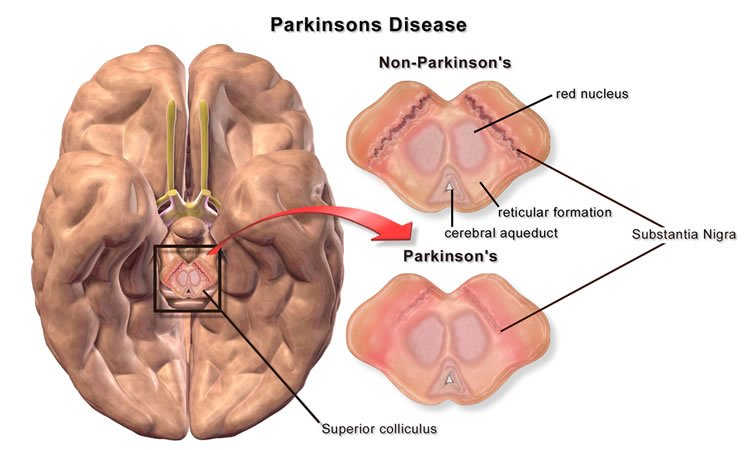 New Potential Treatment for Parkinson's Disease