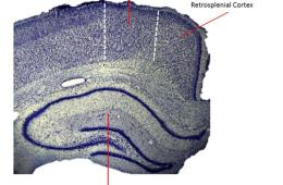 This image shows the retrosplenial cortex.