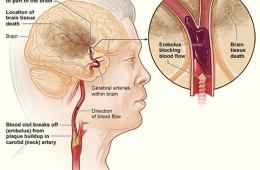 This diagram shows how a stroke can occur.