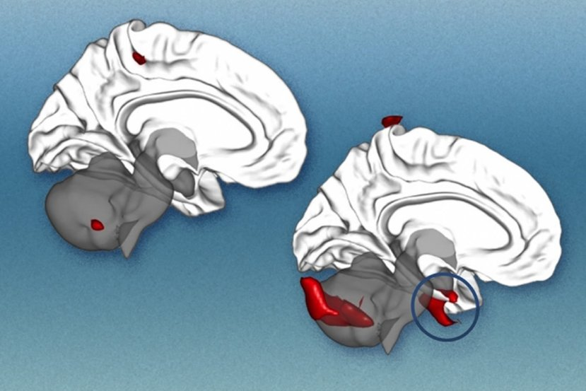 This image shows two brains.