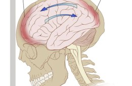 This shows a diagram of the forces on the brain in a coup-contrecoup injury.