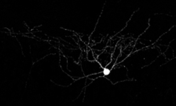 Dynamically Tweaking Neurons