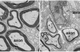 Image of axons on a brain slice.