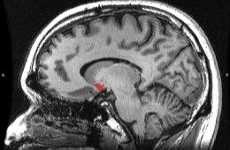 Image shows a sagittal MRI slice with highlighting (red) indicating the nucleus accumbens.