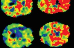Images are brain scans of people with OSA and without OSA.