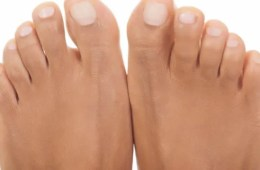 Photo shows a person's feet and toes.