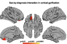 Image shows five brain slices. The caption best describes the image.