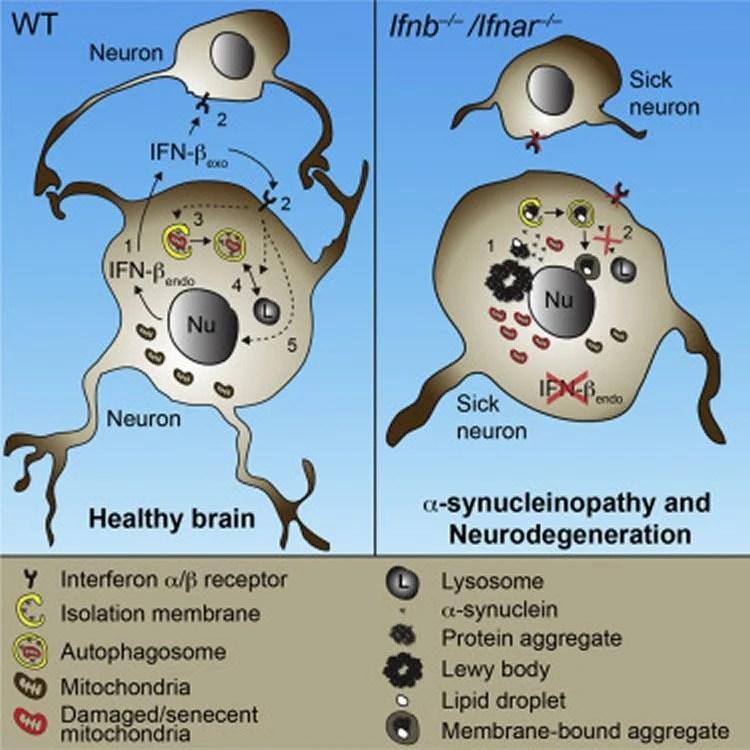 Immune Gene May Prevent Alzheimer's and Parkinson's Disease