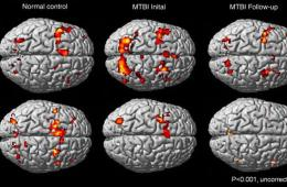 brain scans of people with mTBI.