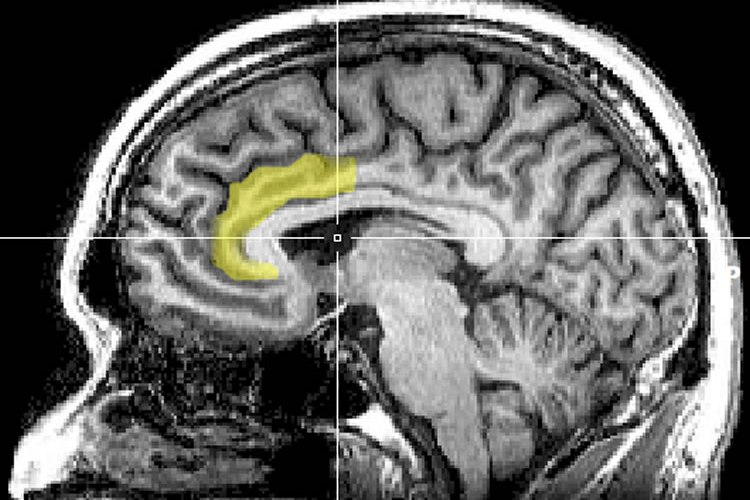 MRI scan with the anterior cingulate cortex highlighted.