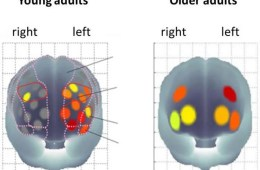 Image of brain scans from the study.