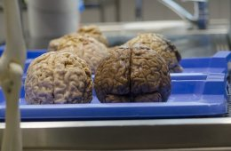 Image shows brains on a tray.